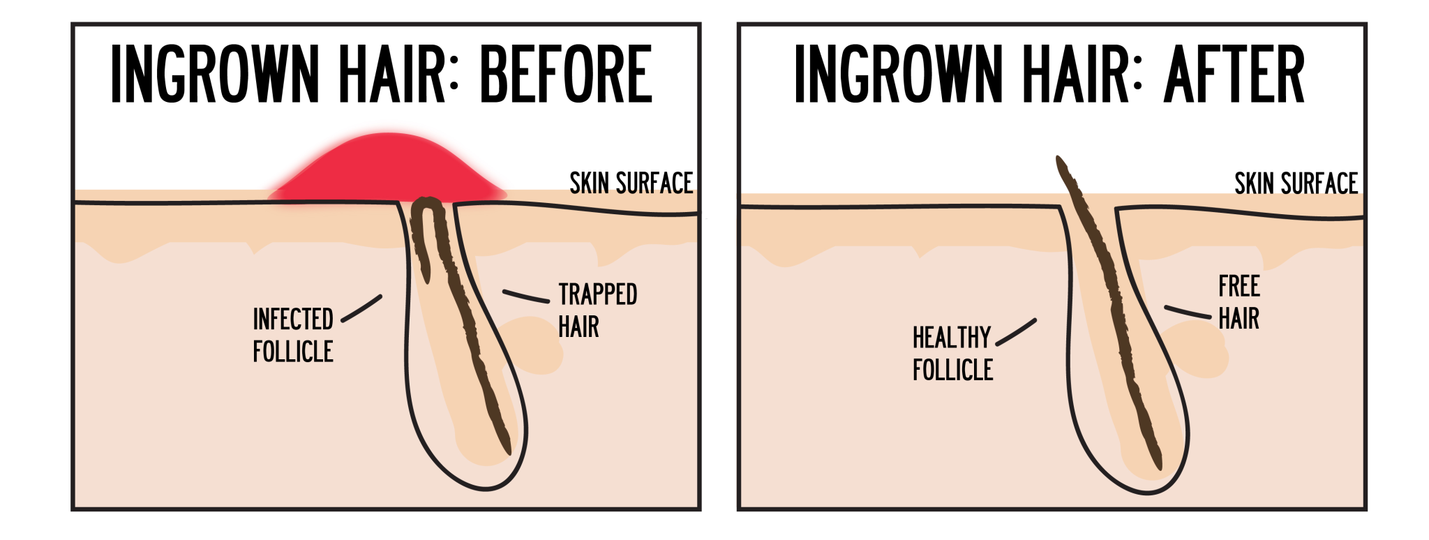 ingrown hair after waxing Gallery
