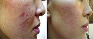 Skin needling melbourne experts