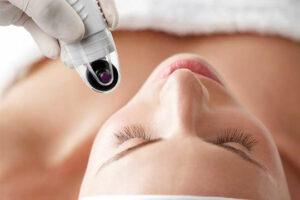 Dermafrac by Beautyologist