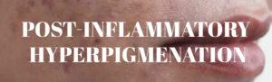 Post-inflammatory Hyperpigmenation